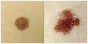 рак кожи лечение