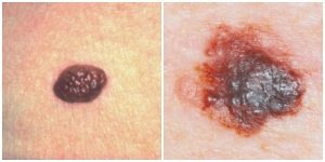Учимся определять и предотвращать рак кожи!