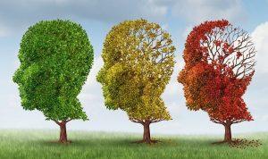 Болезнь Альцгеймера, лечение