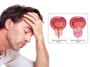 аполлон средство от простатита