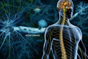 рассеянный склероз